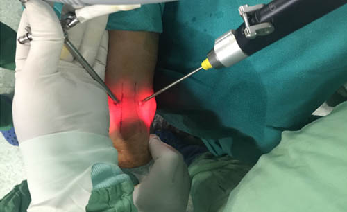 Diagnostic & Therapeutic Ankle Arthroscopy