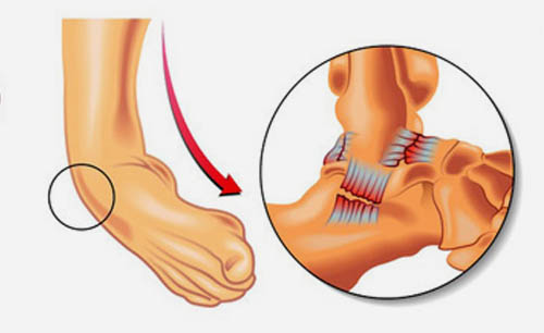Instability of Ankle Joint